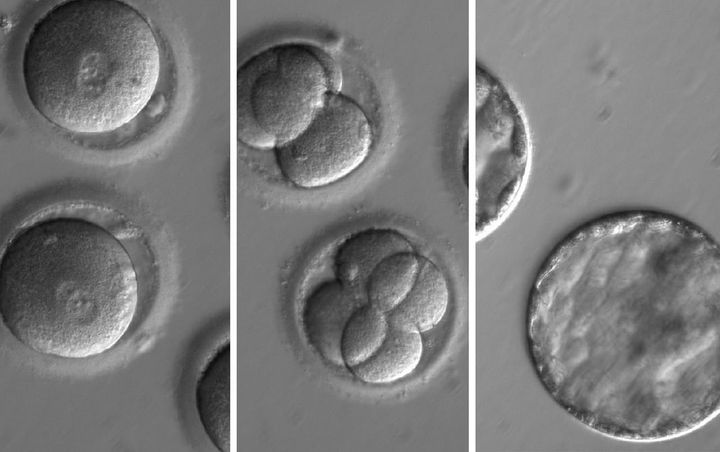 The development of embryos after injection of a gene-correcting enzyme and sperm.