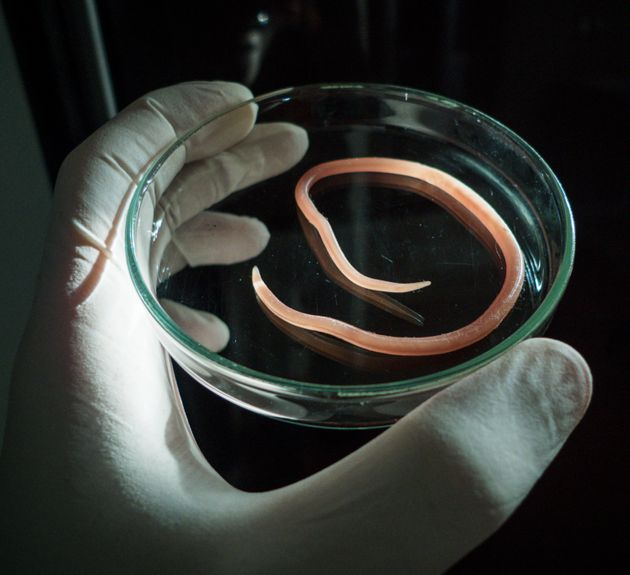A Parasitic Worm Egg Could Soon Be Legally Bought As Food In