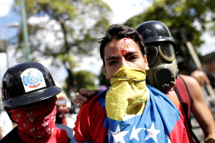 An injured demonstrator is seen at a rally during a strike called to protest against Venezuelan President Nicolas Maduro's go