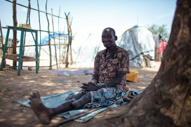 A refugee with disabilities at a displacement camp in the Gumbo village of Juba in October 2016.