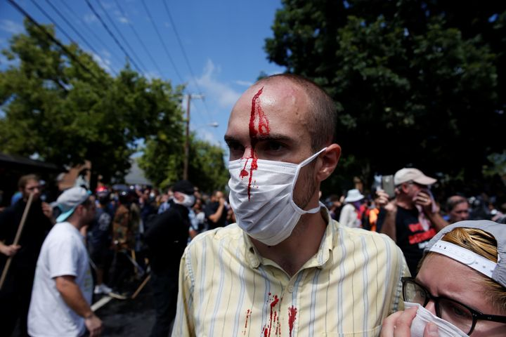 Clashes between white nationalist protesters and counter-protesters on Saturday left several people injured.