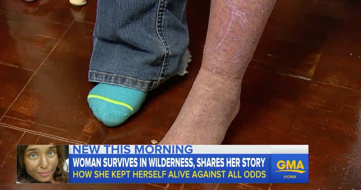 Theris shows off one of her scratched and bug-bite-covered legs after her rescue.