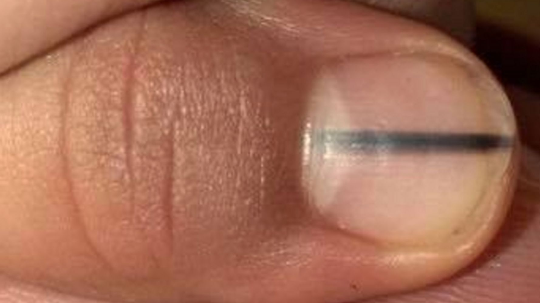 Dark Stripe On Nail The Unexpected Symptom Of Skin Cancer We Should All Be Wary Of Huffpost Uk Life