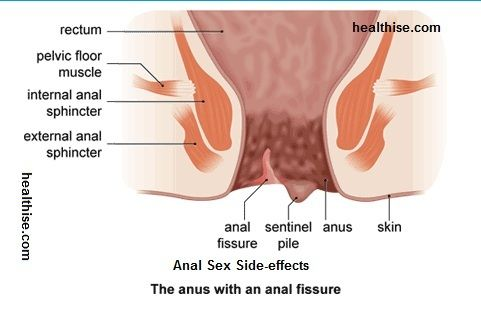 Health Risks With Anal Sex