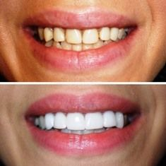 Before and After of a CEREC CAD/CAM same day smile makeover done by Dr. Alvarez