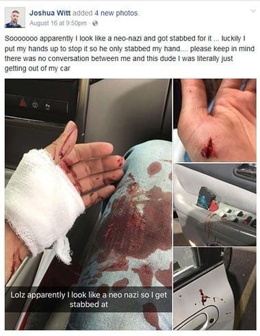 Witt posted pictures of his (self-inflicted) injuries to Facebook