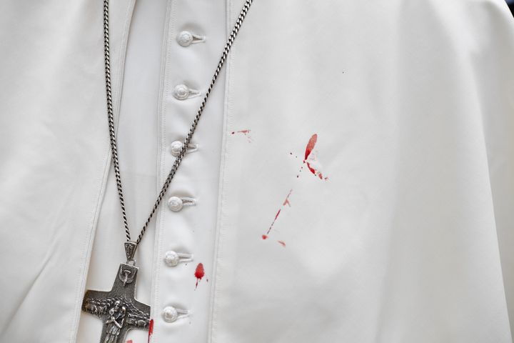A few droplets of blood stain Pope Francis' white tunic from a bruise around his left eye and eyebrow caused by an accidental