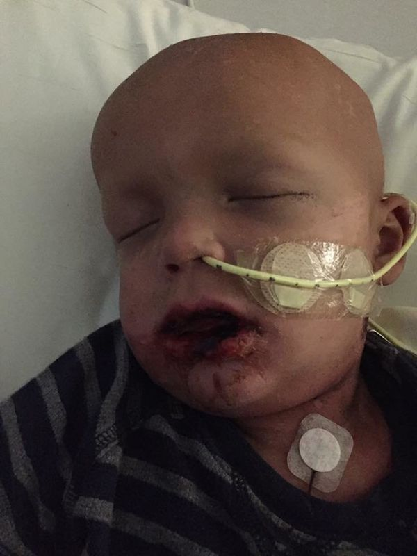 """""""I'm going to share the side of cancer you won't see in St Jude commercials.This is Joe, our little warrior. He was dia"""