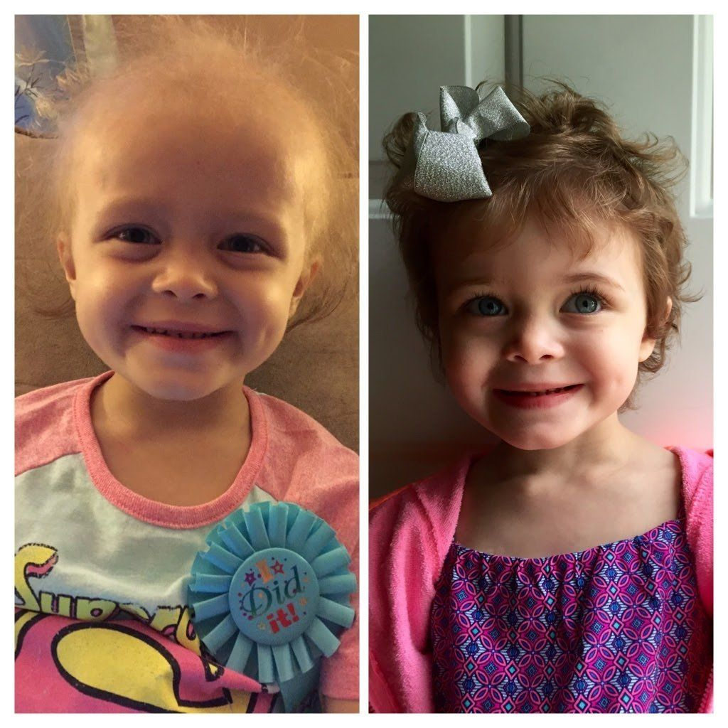 """""""Our daughter Ava's cancer journey has been a whirlwind of emotions. Just two months before her third birthday, Ava was diagn"""