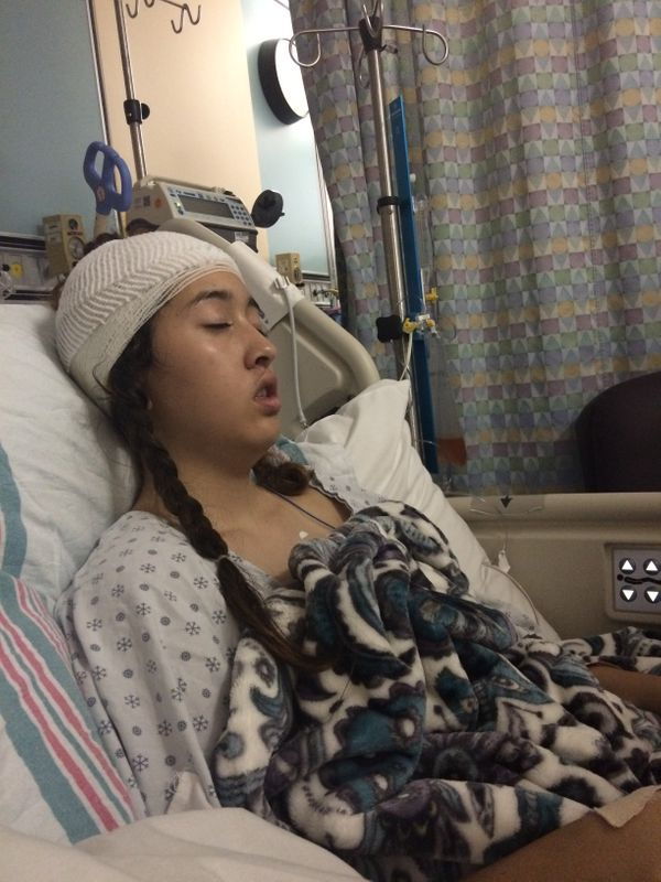 """""""Rosie was diagnosed with malignant ependymoma brain tumor following a 14-hour emergency brain surgery, on Sep. 9, 2015"""