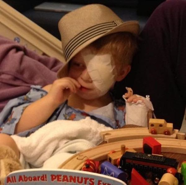"""""""Carson was diagnosed with retinoblastoma at 2 years old. After his intra-arterial chemotherapy failed, he had to have his le"""