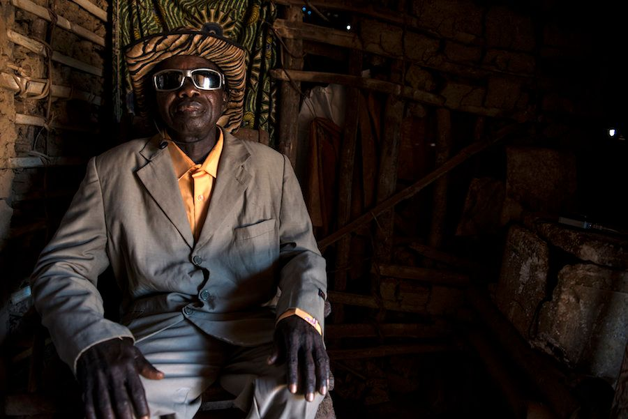 Bafimbo Baudoin, que sofre de elefantíase, ainda gosta de se vestir