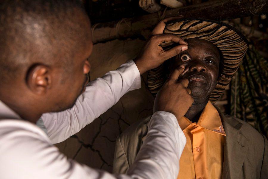 Um médico examina Baudoin para verificar se há outras infecções que possam impedi-lo de usar um fármaco...