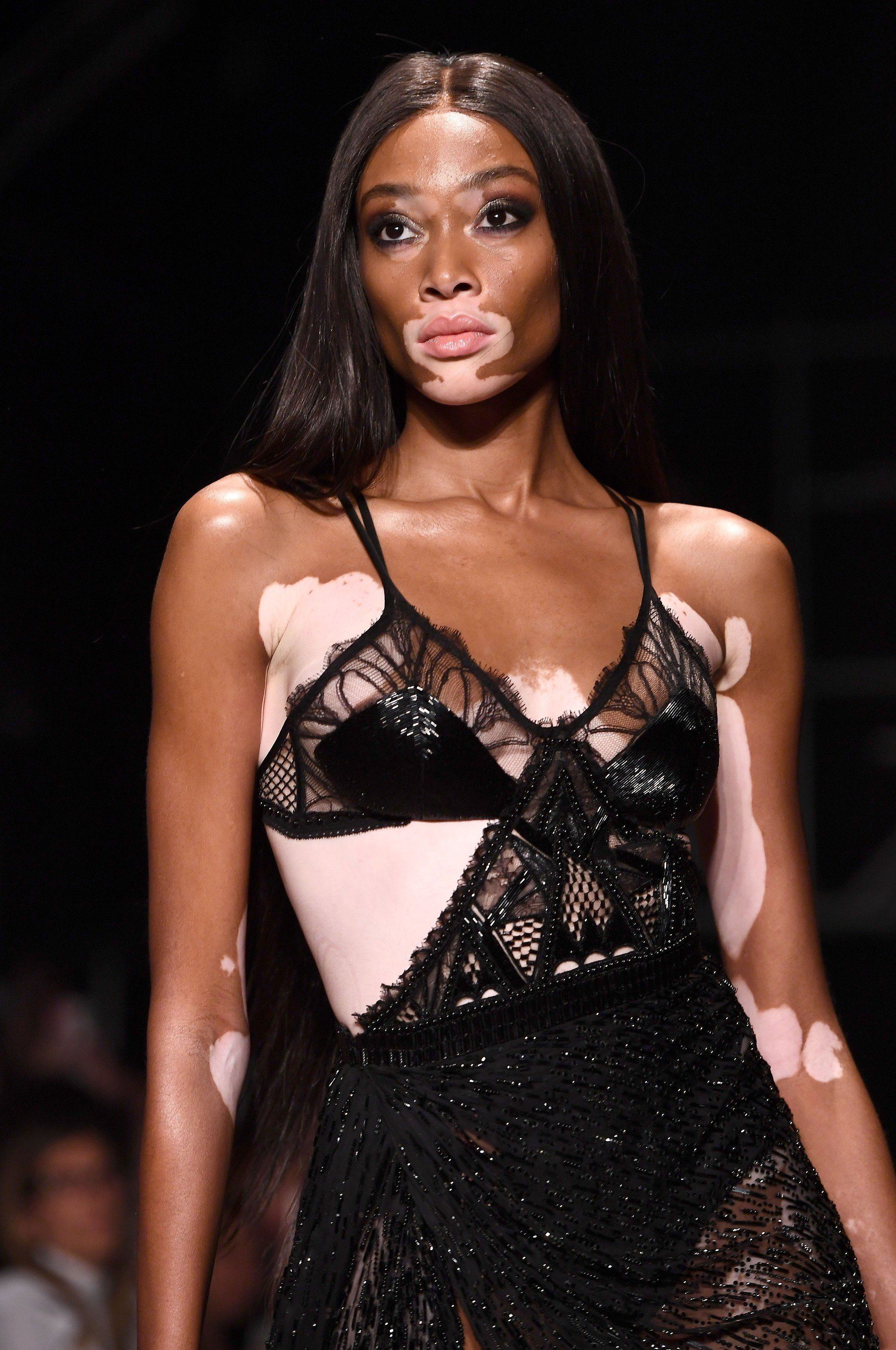Winnie Harlow And Julien Macdonald Were A Match Made In Heaven This London Fashion