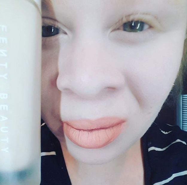 Rihanna's Fenty Beauty Has Made This Albino Woman Very Happy, As It Really Does Cater For All Skin