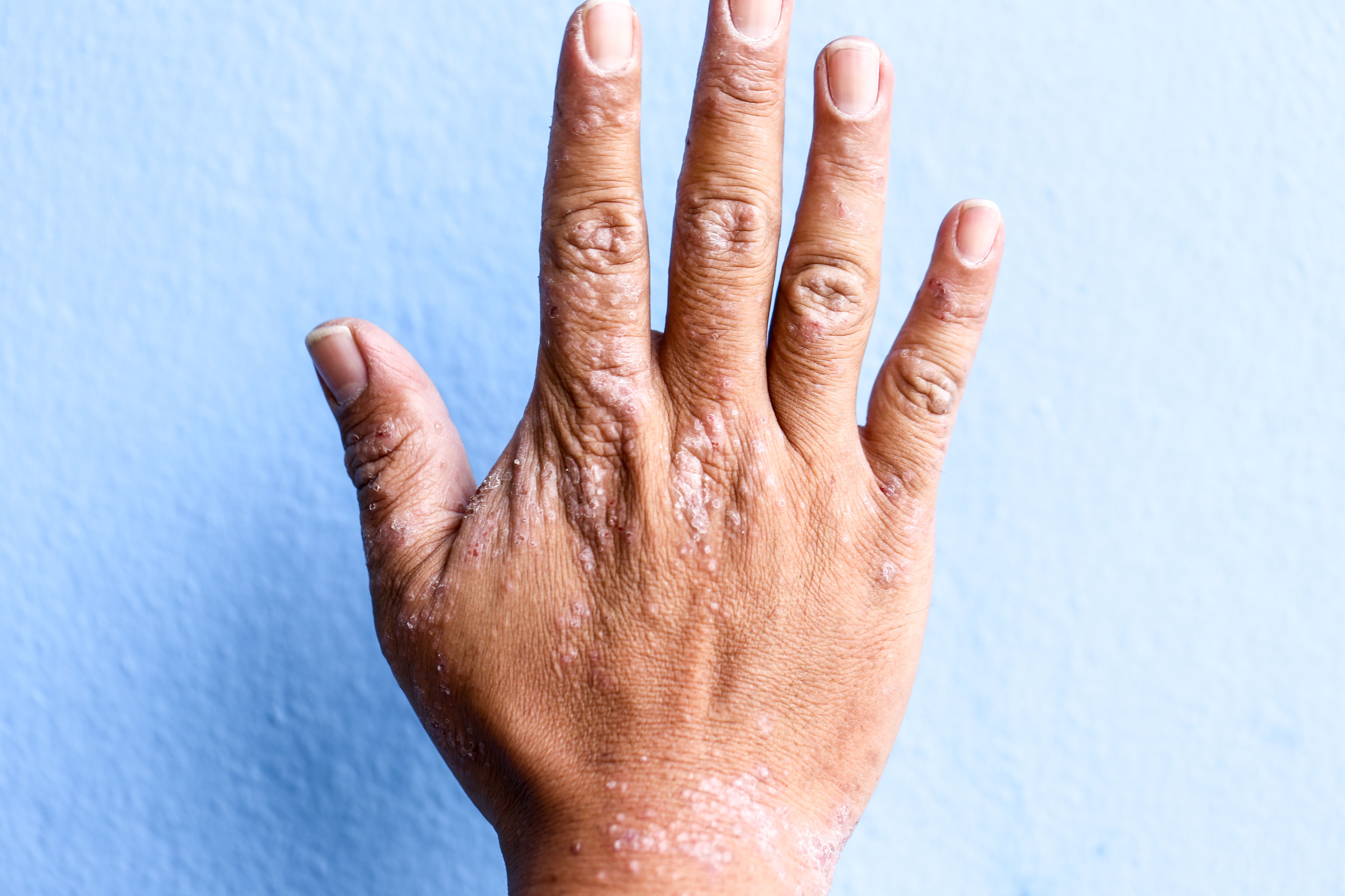 What Is Eczema? Treatment, Causes And Symptoms
