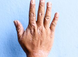 What Is Eczema? Treatment, Causes And Symptoms Of The Itchy Skin Condition Explained