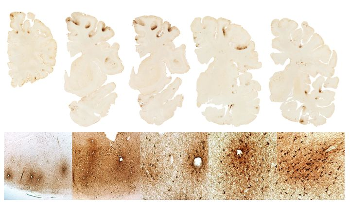The top row shows severe deposition of tau protein in the frontal lobes of Hernandezs brain The bottom shows microscopic depo