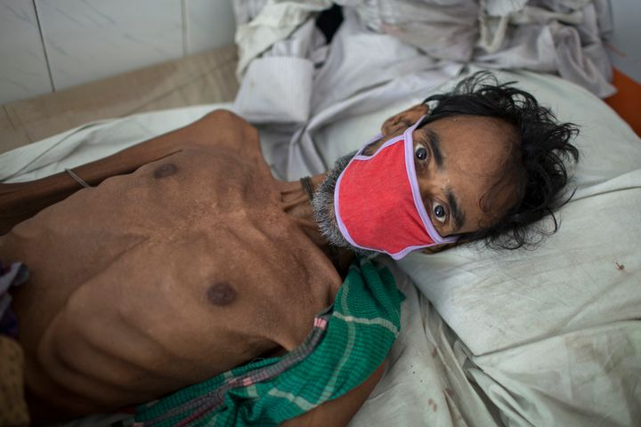A 55-year-old tuberculosis patient in Bangladesh in 2016. It isestimated that 75 million people will die of multidrug-r