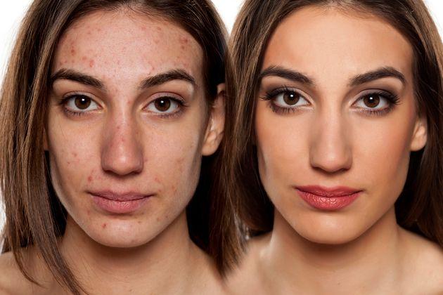 Getty Images prohíbe las fotos retocadas en las que se cambie el cuerpo de un