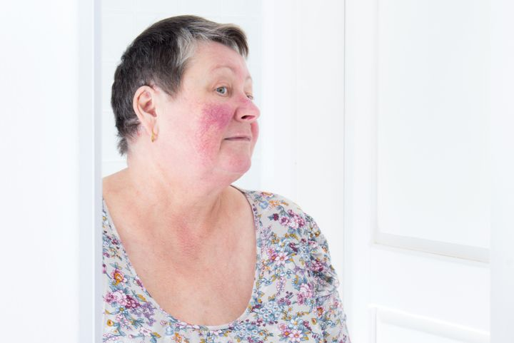 A woman with rosacea, a skin condition characterized by facial redness, small and superficial dilated blood vessels, pimples and sometimes ruddy skin.