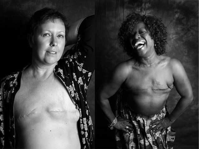 Women Bare Mastectomy Scars To Raise Breast Cancer