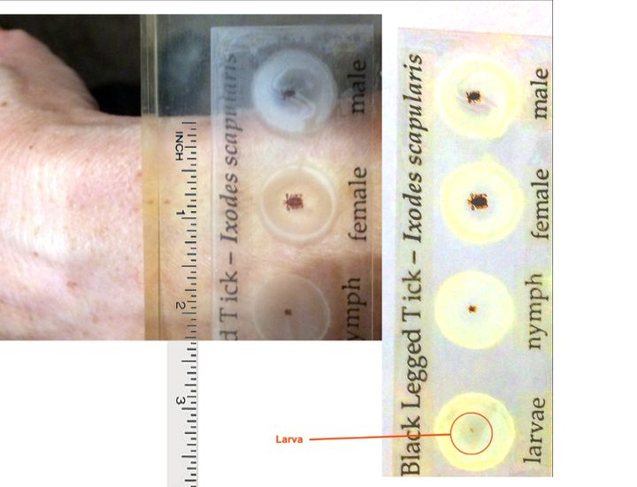 <p> Right: Stages of tick life cycle. Left: nymph and adult female against an average human wrist. </p>