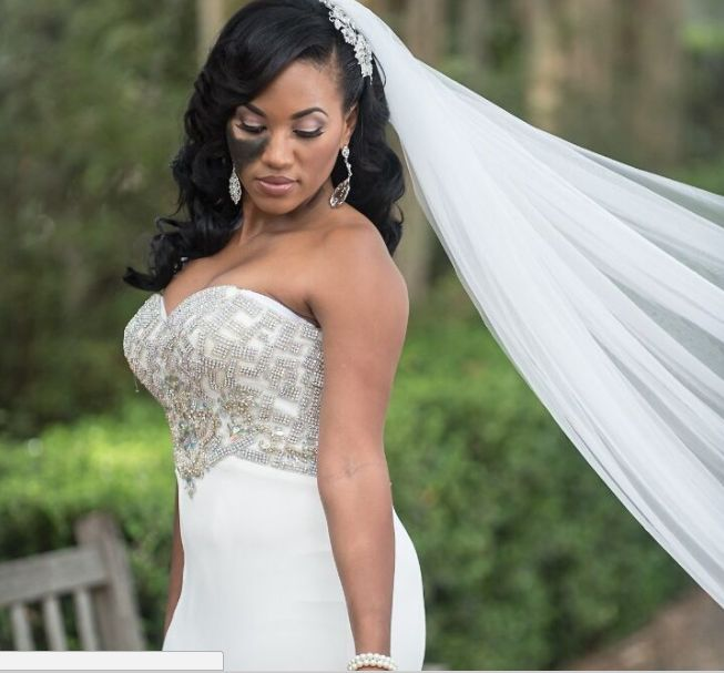 The Important Reason One Woman Refused To Cover Up Her Birthmark On Her Wedding