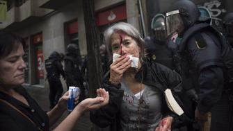 A woman tends to her injuries in front of riot police near a school being used as a polling station for the banned referendum, in Barcelona, Spain, on Sunday, Oct. 1, 2017. Spanish police moved in to shut down some polling stations as voting began Sunday in Catalonias illegal referendum on independence. Photographer: Geraldine Hope Ghelli/Bloomberg via Getty Images