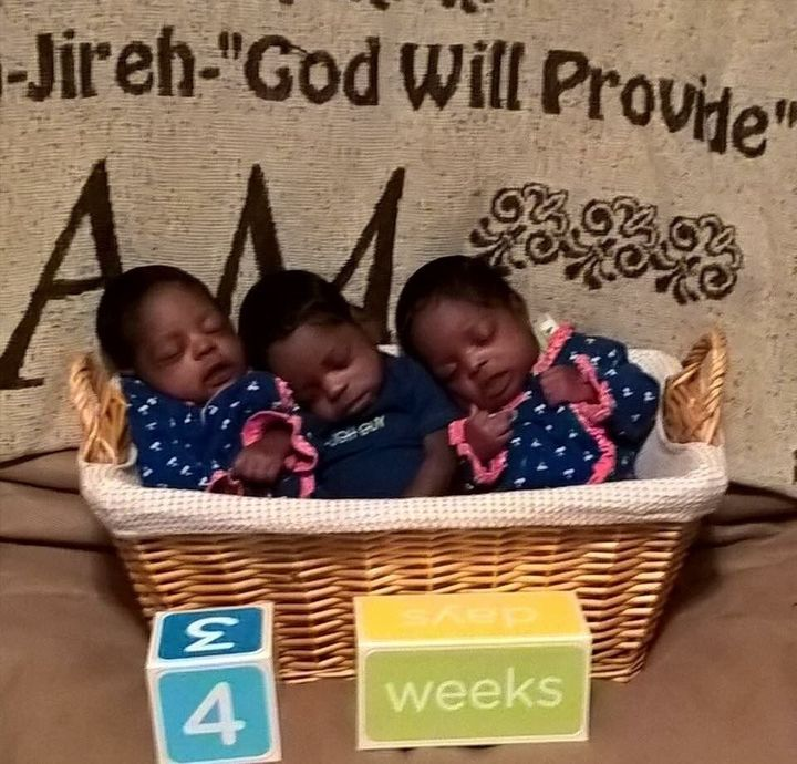 Triplets delivered healthy and on time despitea high-risk pregnancy, in which the mother developed fibroid cysts and ha