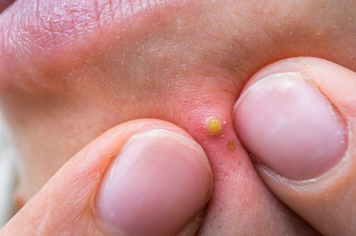 Pimple Popping 2020 New.The Viral Pimple Popping Stories That Chronicle Our Grossest