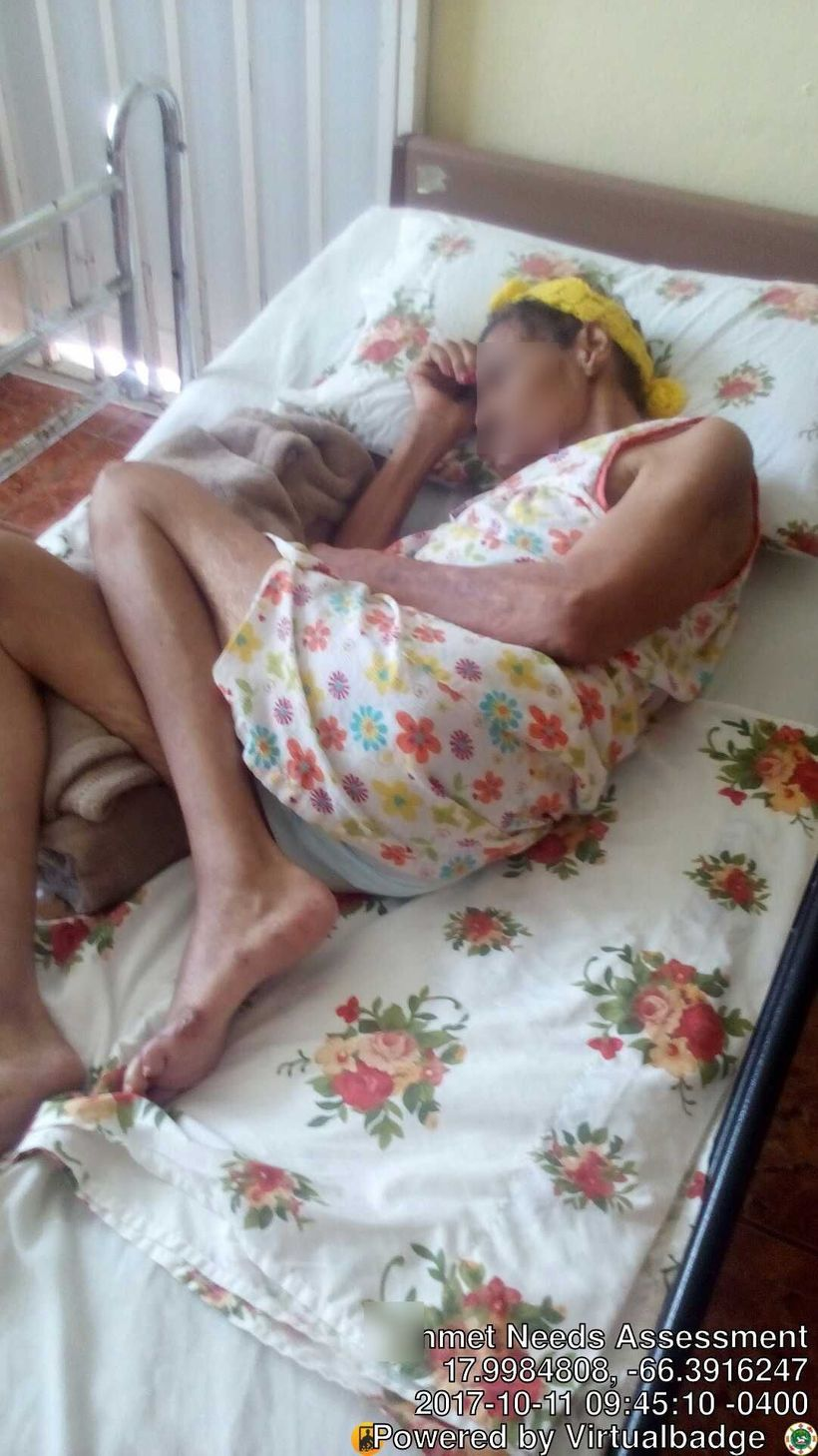 A woman in a Juaca nursing home wearing bed sheets in place of adult diapers.