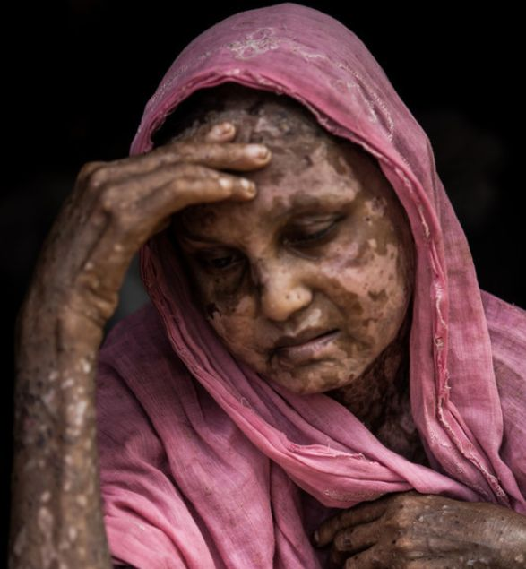 Shara Jahan, sitting for a portrait in Bangladesh's Kutupalong Refugee Camp, was badly burned before she fled