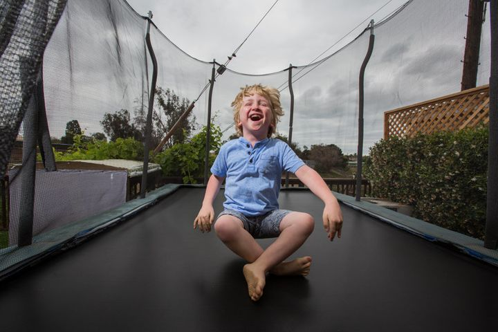 "Ian is a fun-loving boy who has&nbsp;<a href=""https://ghr.nlm.nih.gov/condition/megalencephaly-capillary-malformation-syndrome"" target=""_blank"">megalencephaly-capillary malformation syndrome</a> (MCAP) and <a href=""https://ghr.nlm.nih.gov/condition/polymicrogyria"" target=""_blank"">polymicrogyria</a>&nbsp;(PMG), which involve the skin, connective tissue and brain causing a disproportionately large head and capillary malformations on the skin."