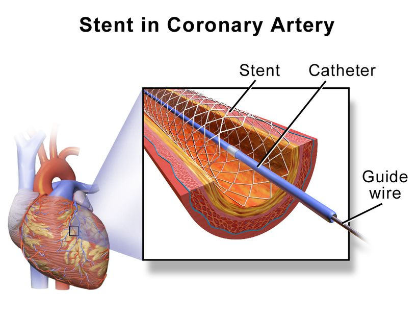 Stenting in a coronary artery - the ABS Stenting System we believe will be shown to simplify the process, eliminate gaps and overlap and simplify inserting stents into challenging spots like bifurcations.