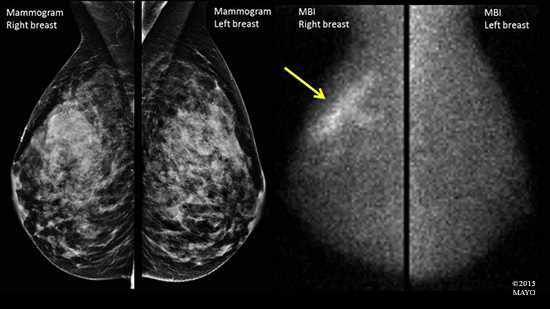 <p>The difference between a mammogram (left) and MBI (right).</p>