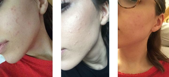 <p>Skin a week before tablet and skincare regime.</p>