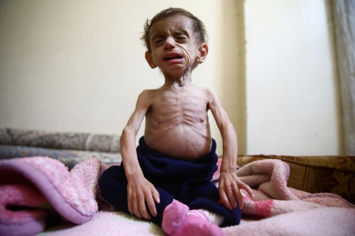 Hala al-Nufi, 2 1/2 years old, suffers from a metabolic disorder which is worsening due to the siege and food shortages in th