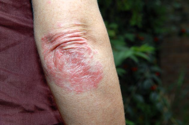 This Is What People With Psoriasis Want You To