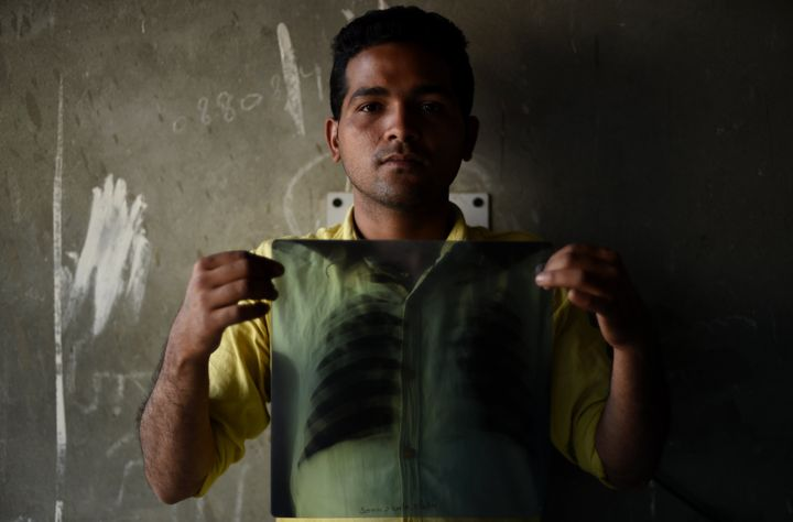 Indian tuberculosis patient Sonu Verma, 25, poses with his chest X-ray on March 3, 2016.