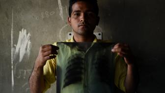 In this picture taken on March 3, 2016, Indian tuberculosis (TB) patient Sonu Verma, 25, poses with his chest x-ray in Sonipat. Some 2.2 million patients are diagnosed with the disease in India every year, more than in any other country, according to the World Health Organisation.  / AFP / MONEY SHARMA / TO GO WITH AFP STORY INDIA-HEALTH-DISEASE-TUBERCULOSIS        (Photo credit should read MONEY SHARMA/AFP/Getty Images)