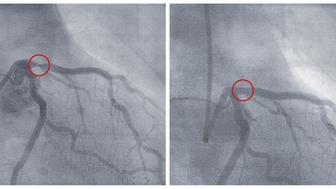 X-ray photographs of a cardiac catheterization, before and after a balloon dilation. For long-term stabilization of the dilation is mostly still the implantation of a stent. (Screenshot-prints from motion pictures)