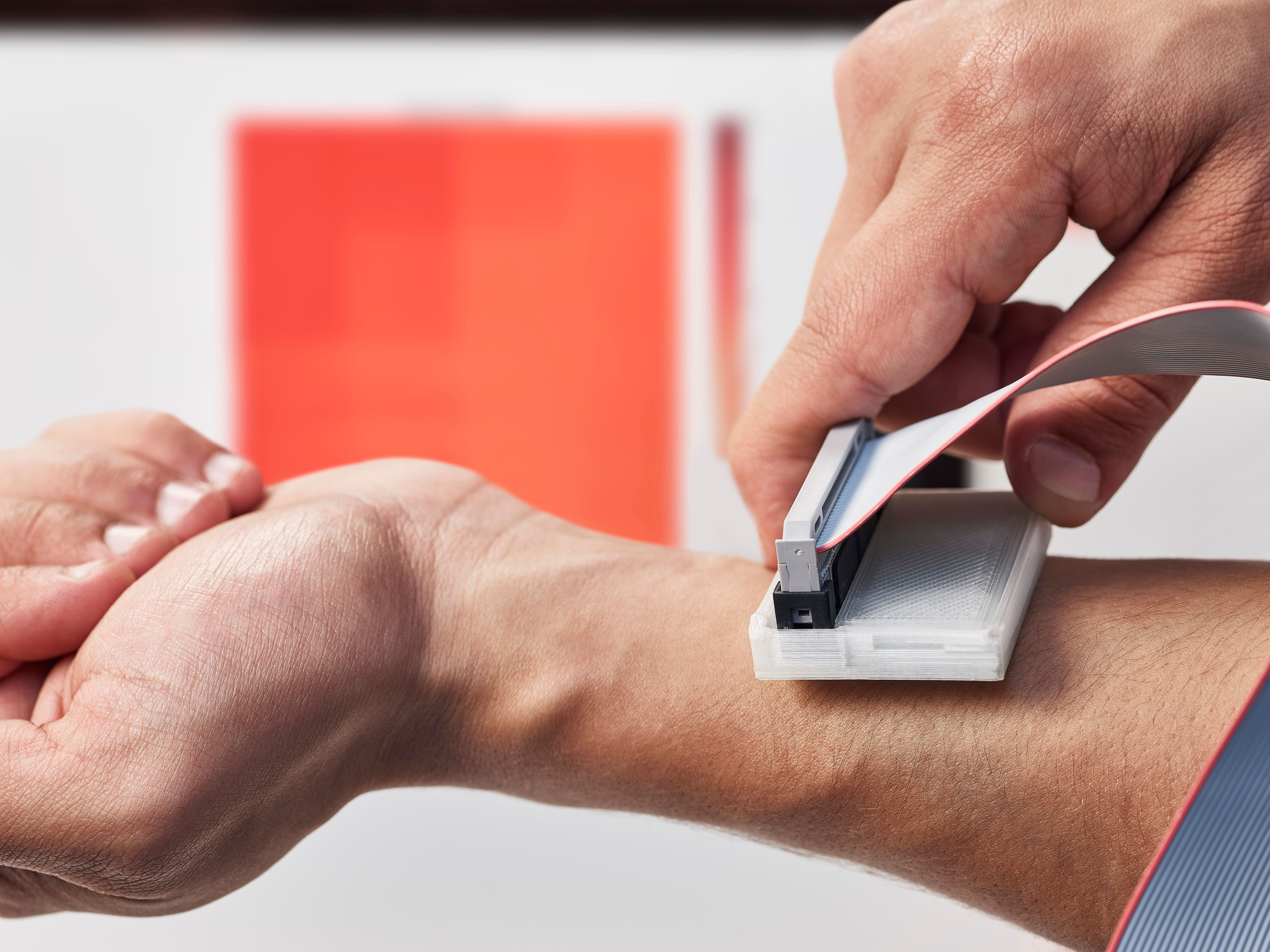This Incredible Gadget Can Detect Skin Cancer Cheaply And