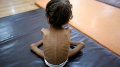 Millions In Yemen Will Die Unless Saudi Aid Blockade Is Lifted, UN