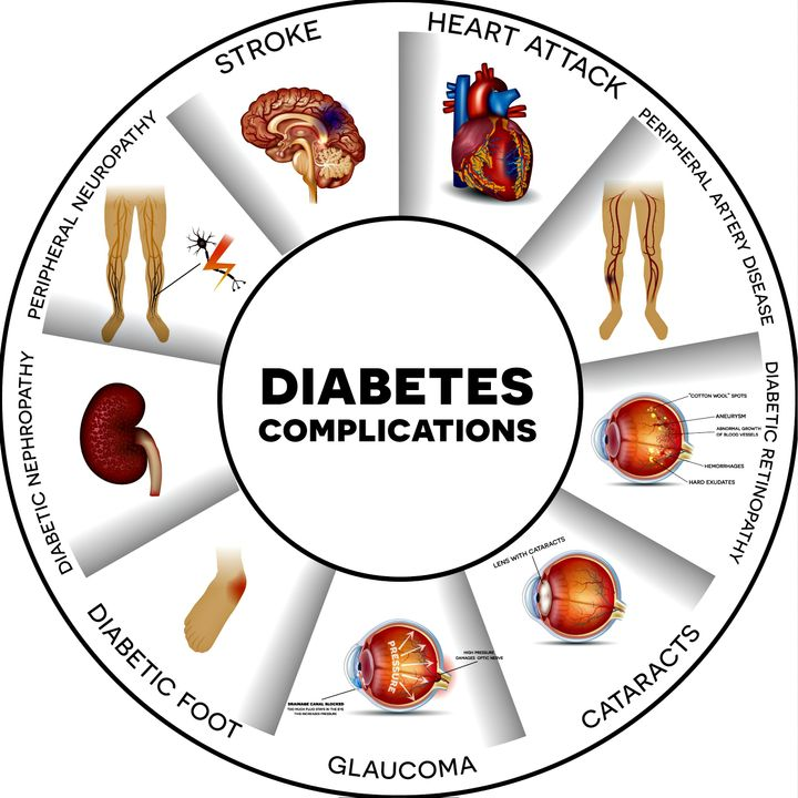 <p>Complications of diabetes</p>