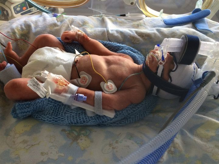 Zach was born 11 weeks early and weighed 3lb 9oz.