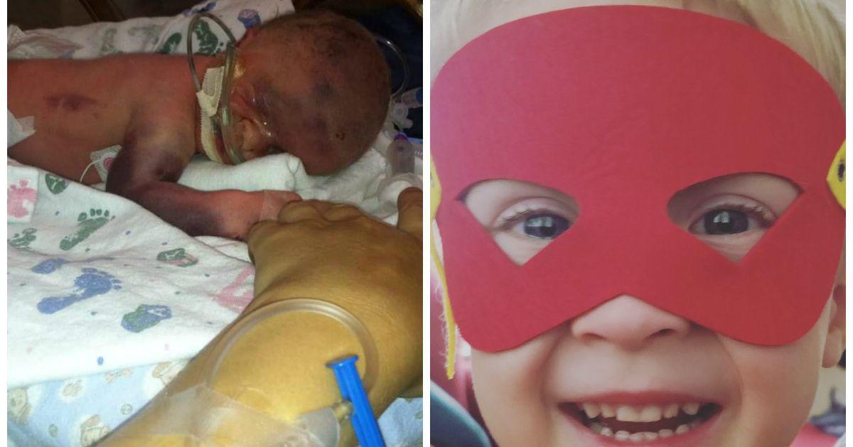 ec49c9857 El antes y el después de estos bebés prematuros es la viva imagen de la  fortaleza
