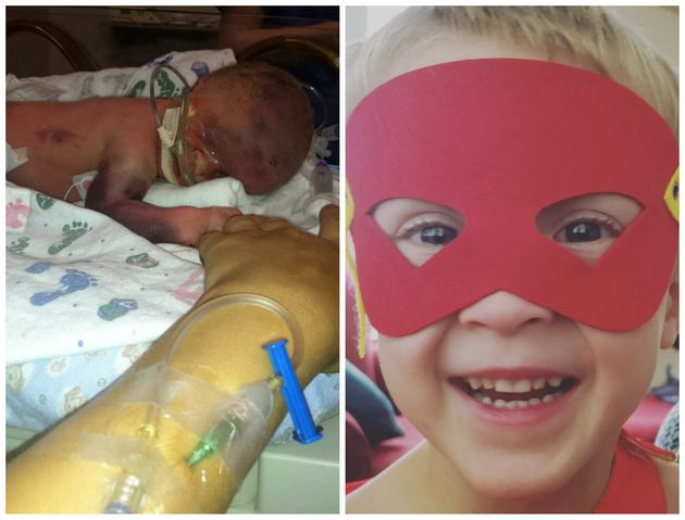 Emmett was born at 32 weeks gestation, weighing just 4 pounds. The 4-year-old now loves superhero capes...