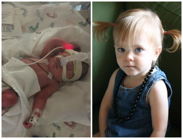 Evelyn was born at 31 weeks. She stayed in the NICU for 54 days. Come December, she will be turning 2 years old and is a fun,