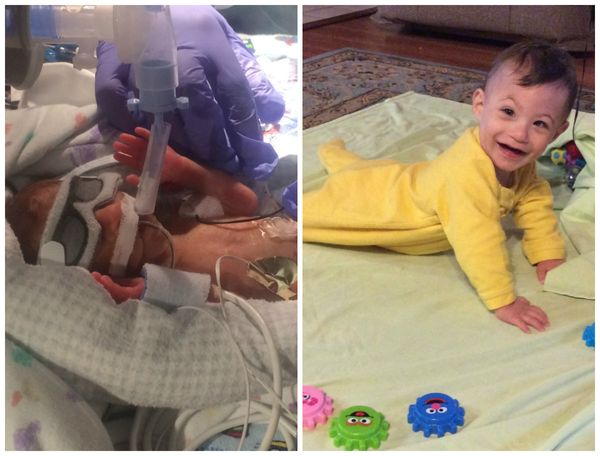 Calvin was born prematurely at 26 weeks, four days, weighing 1 pound, 1 ounce, on Oct. 29, 2016. After a 79-day NICU sta